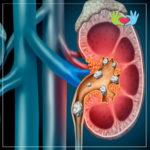 Litotripsia Percutanea de Cálculos Renales