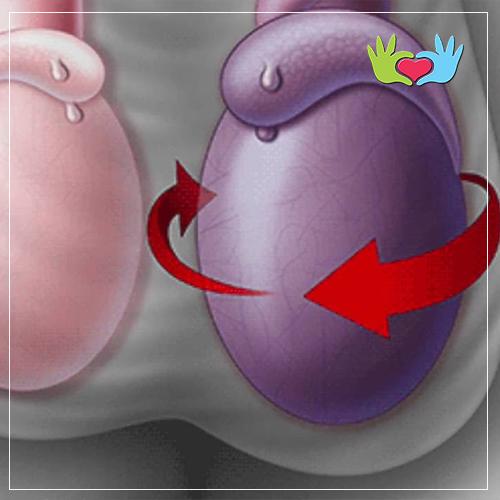 cirugía de erección de torsión testicular